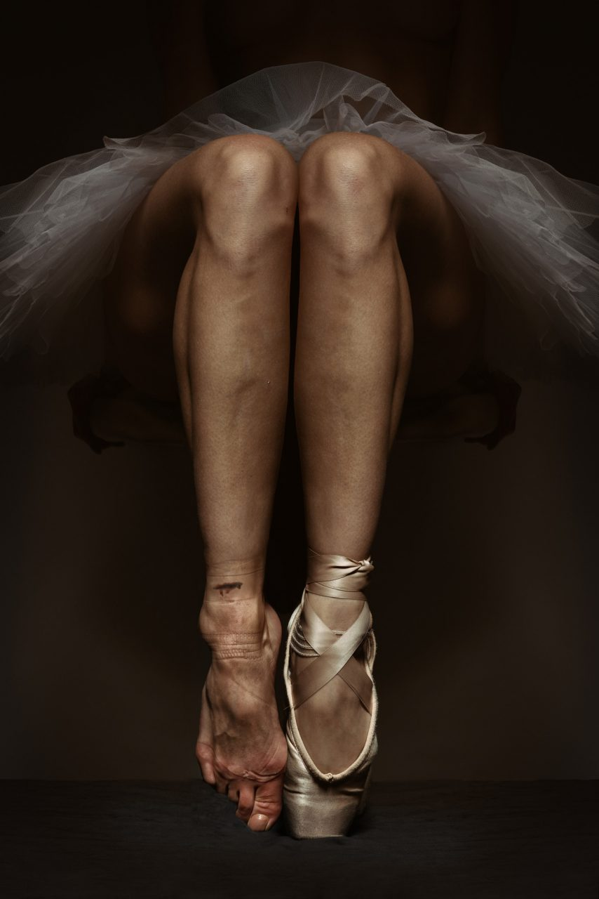 Legs of a ballet dancer with marks from shoes - Silver Award in Fine Art Photography by Michael Hayes